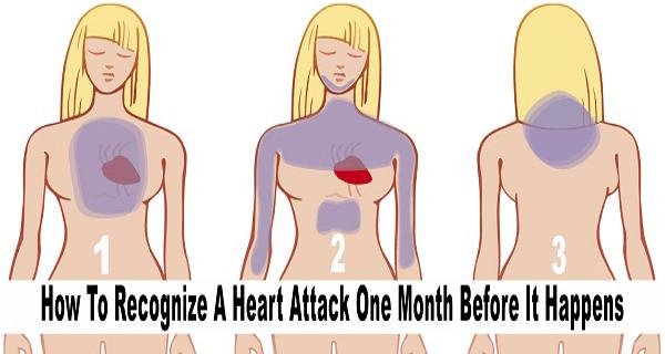 recognize-a-heart-attack